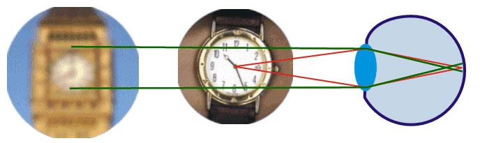 Strahlenverlauf im Auge bei Kurzsichtigkeit